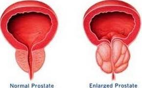 哪几种类似是前列腺囊肿表现